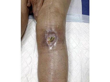 Aspect local avec exposition de la prothèse et rupture de l'appareil extenseur à cause de l'infection