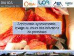 Arthrotomie-synovectomie-lavage au cours des infections de prothèse