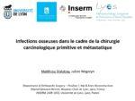Infection et chirurgie cancer/metastase