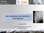 Les indications de résection-arthroplastie